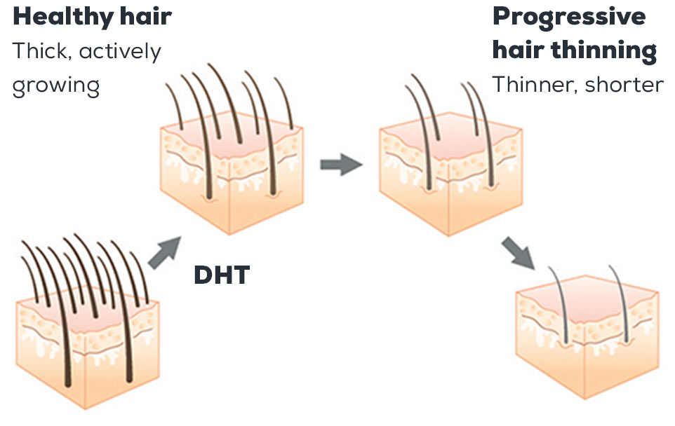 DHT causes progressive hair thinning